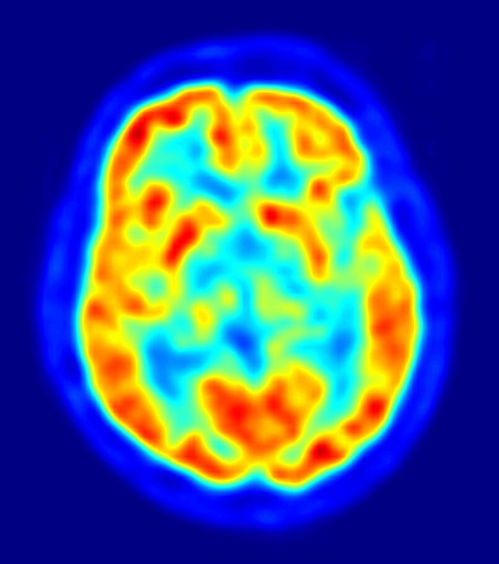 Identifican vínculo entre el tamaño de una región del cerebro y la conformidad social