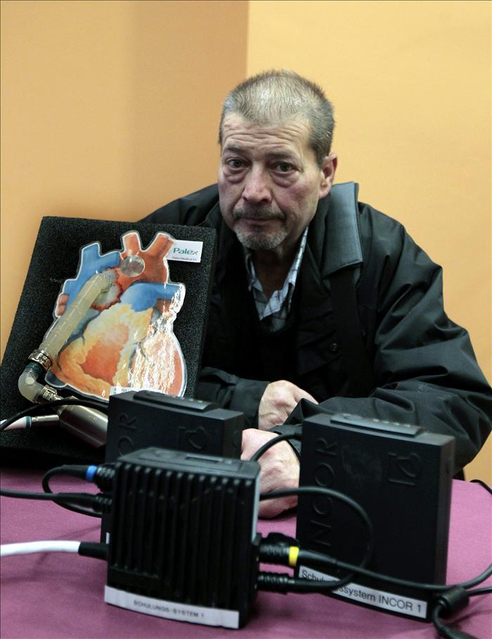 Muere el hombre con el primer corazón artificial implantado en Cataluña