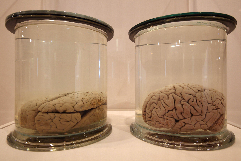 El trabajo en equipo podría ser la clave de que nuestro cerebro evolucionara