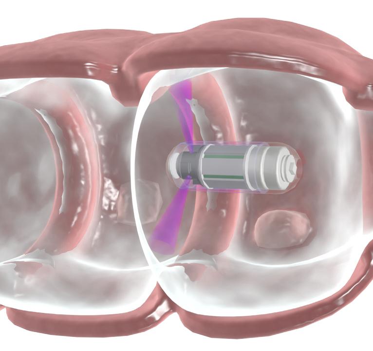 Investigadores israelíes desarrollan una píldora para detectar el cáncer de colon