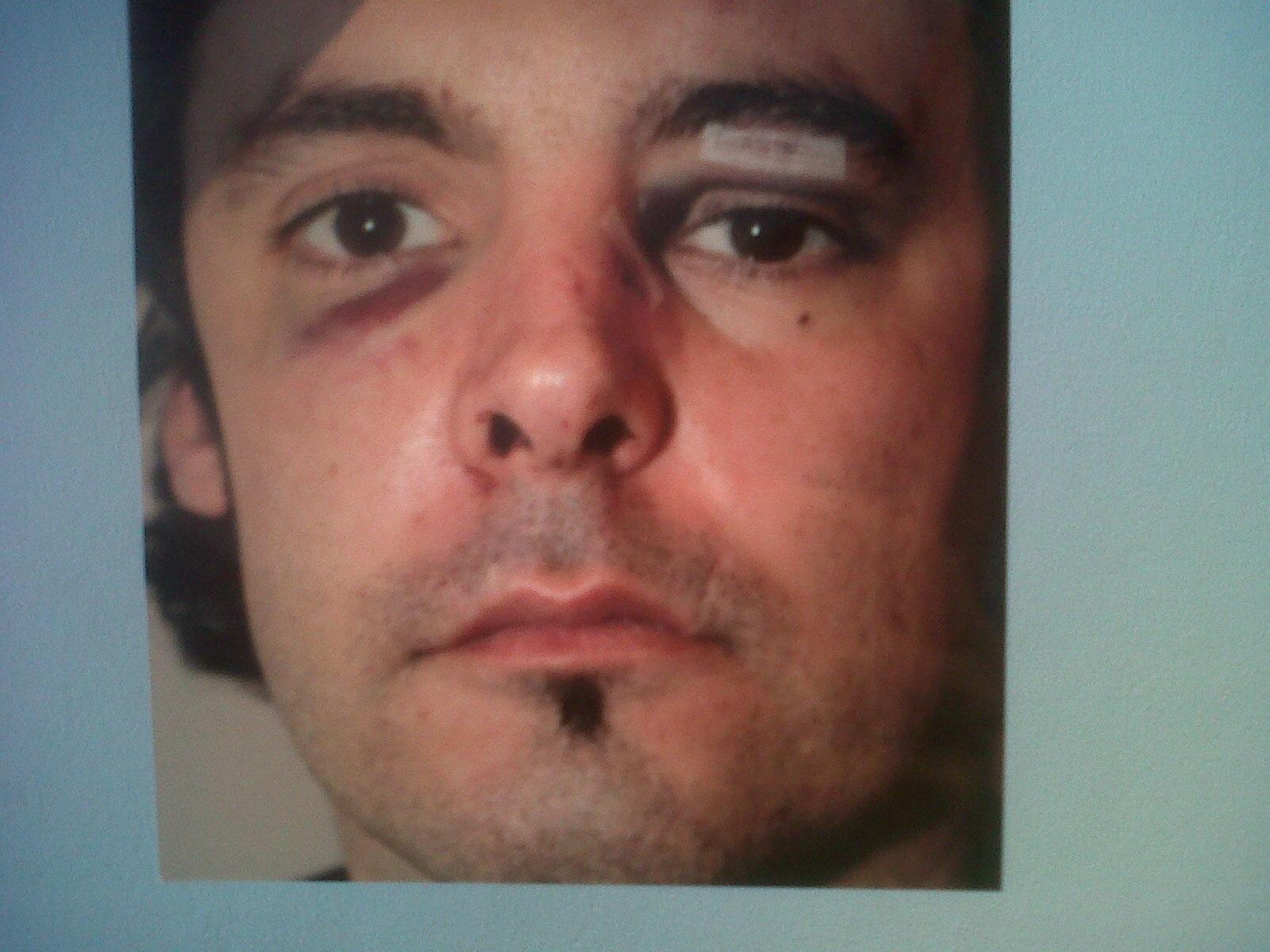 El fiscal pide 6 meses de prisión para dos policías por golpear a un hombre que les agredió con un vaso en un bar