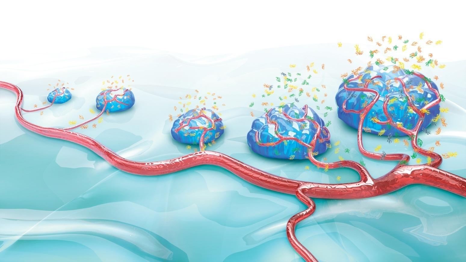 El uso de »Avastin» (Roche) permite retrasar casi un año la progresión del glioblastoma