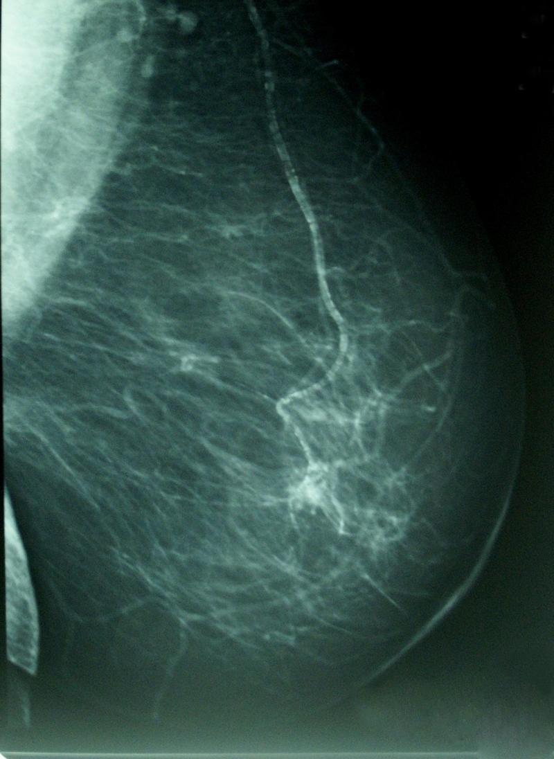 Sólo se reconstruyen las mamas el 30% de las españolas operadas de mastectomía tras un cáncer de mama