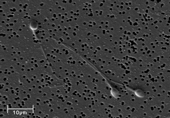 Hasta dos terceras partes de los análisis de esperma muestran parámetros alterados
