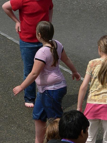 La obesidad en la adolescencia, relacionada con el sobrepeso en la guardería