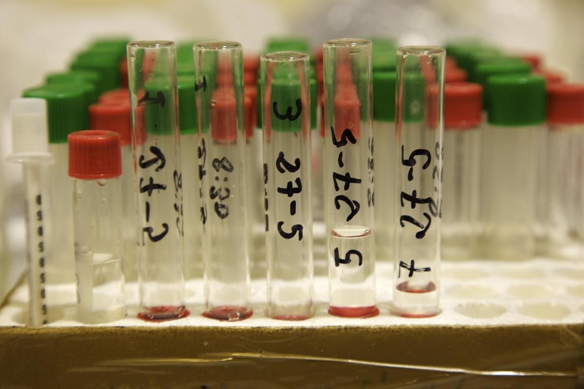 Un análisis de sangre identifica el riesgo de Alzheimer en los 3 años siguientes