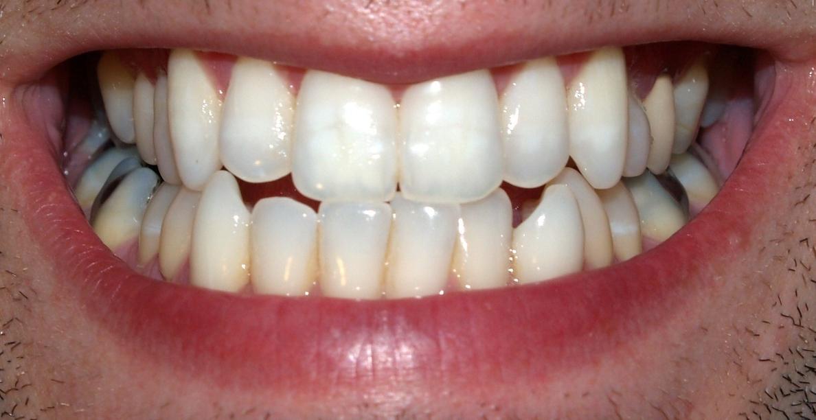 La enfermedad periodontal, asociada con riesgo cardiovascular