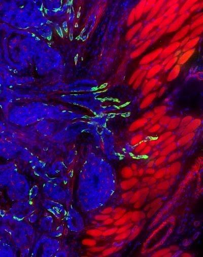 El 93% de pacientes con recaída de cáncer de mama tienen mutaciones contra las que hay fármacos en estudio