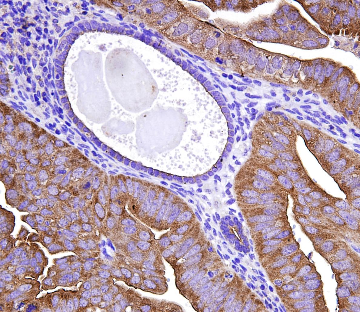 Un medicamento para la pérdida ósea puede ayudar a prevenir el cáncer de endometrio