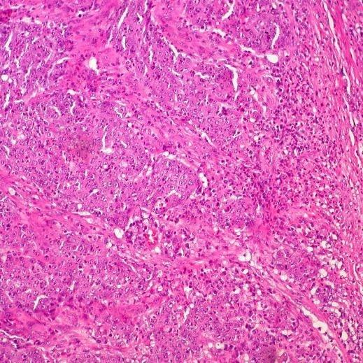 Desarrollan una molécula capaz de destruir las células tumorales del colon sin destruir las sanas