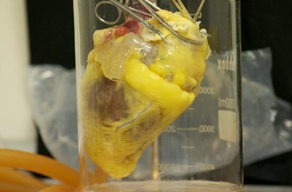 La decelularización de corazones fallecidos permite crear »parches» de células madre para tratar pacientes infartados