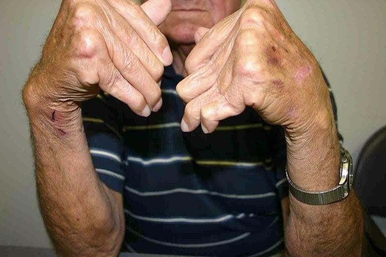 Un test en sangre puede ayudar a predecir el fracaso del tratamiento de la artritis reumatoide