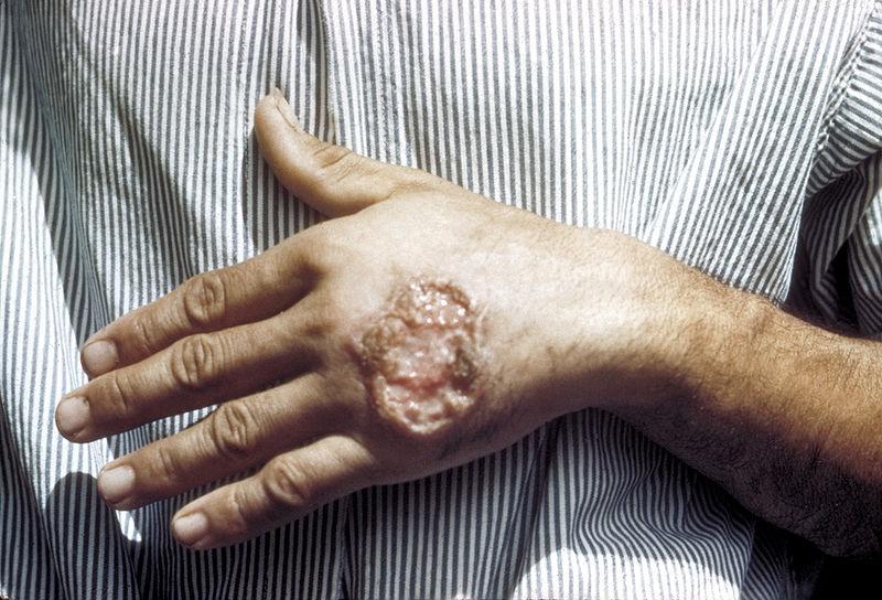 Sanidad lanza su campaña de prevención sobre la leishmaniasis con énfasis en la zona suroeste, donde hubo casos en 2010