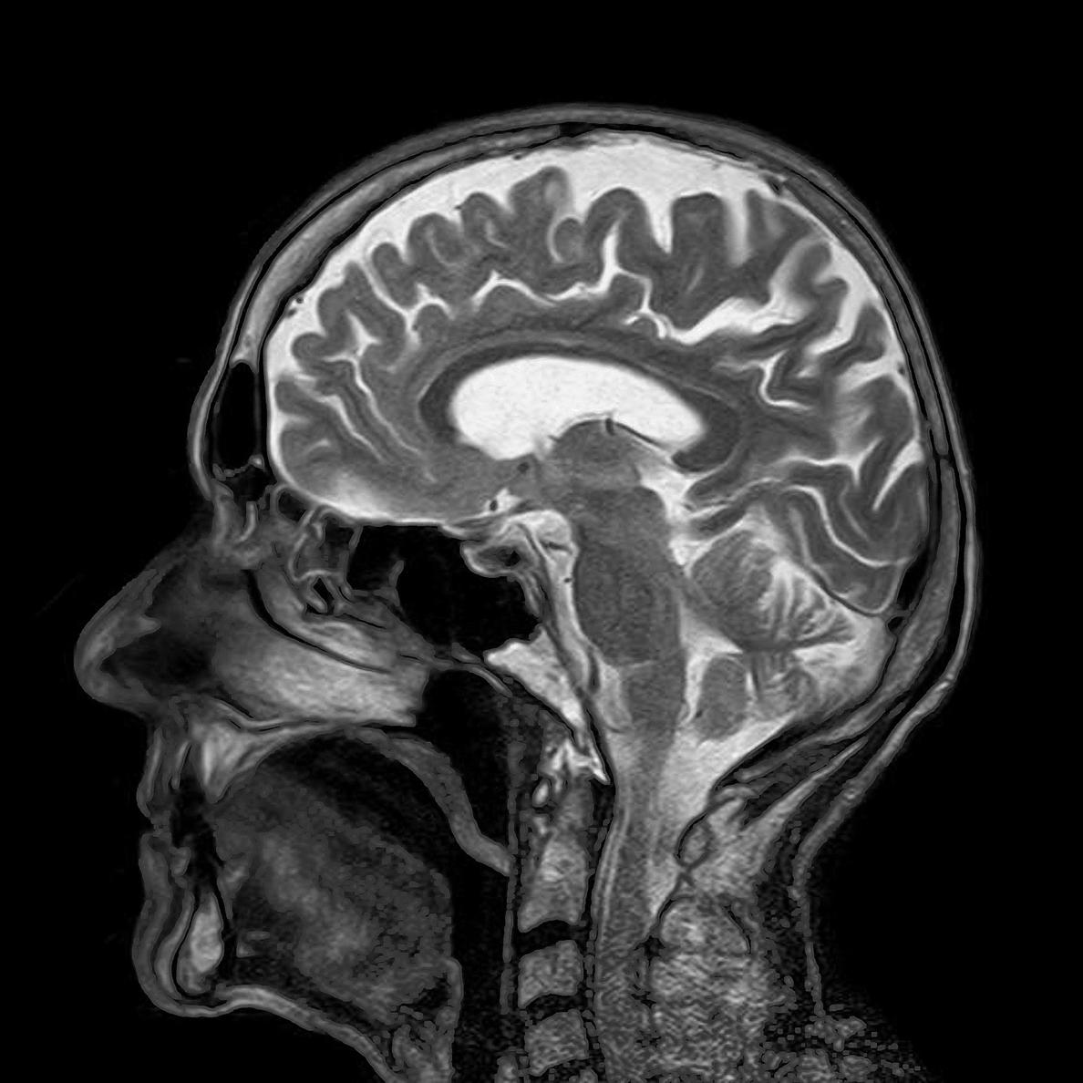 Radiólogos advierten de que el uso de pruebas radiológicas debe estar justificado