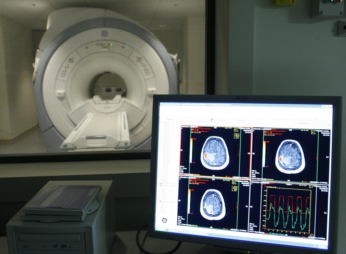 España es uno de los países del mundo con mayor proporción de casos de Alzheimer entre personas de más de 60 años