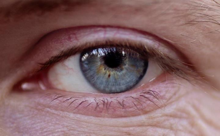 Investigadores descubren que realizar un análisis no invasivo del ojo puede ayudar a detectar el Alzheimer