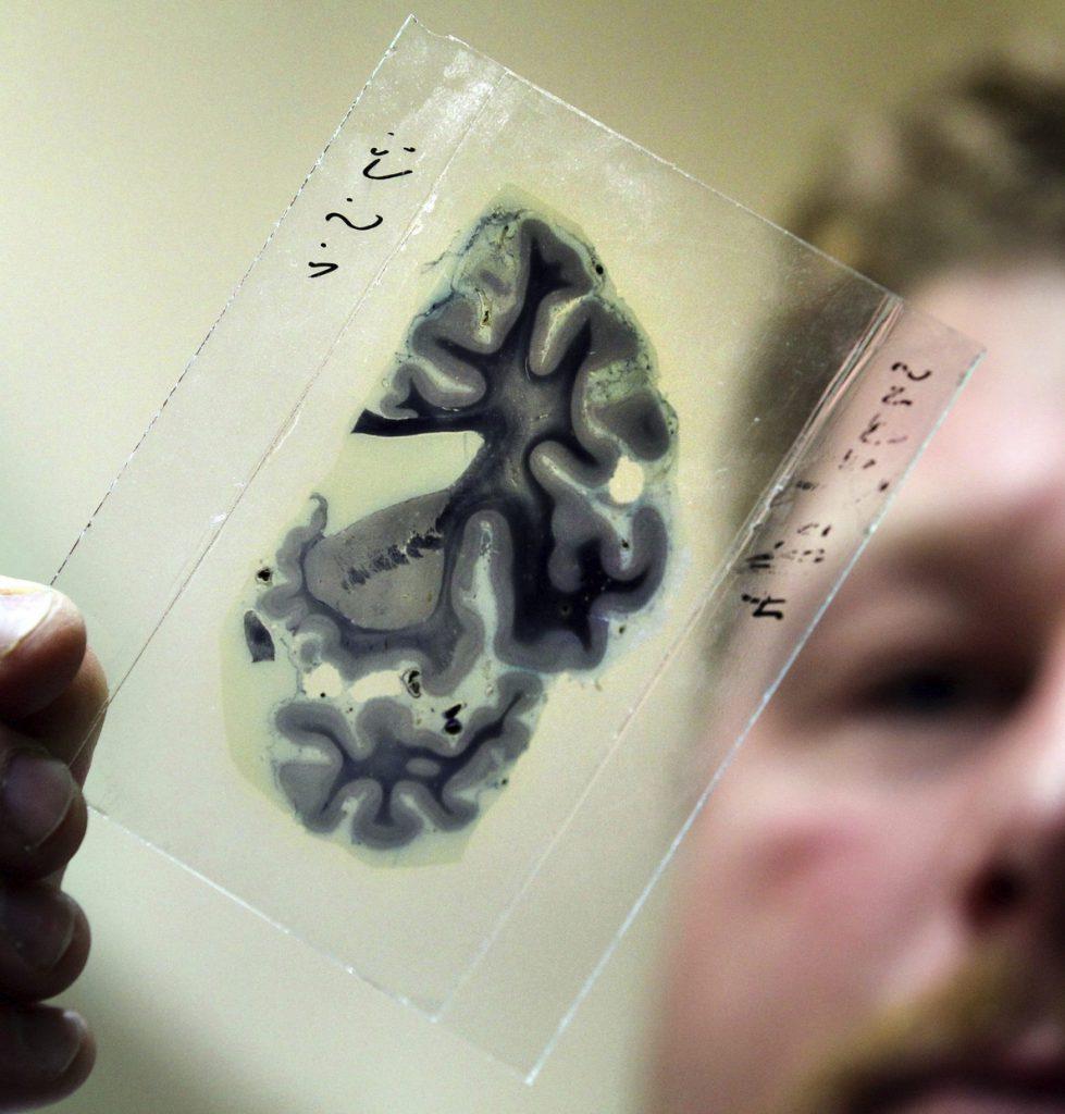 Descubren un elemento clave que favorece las metástasis en el cerebro