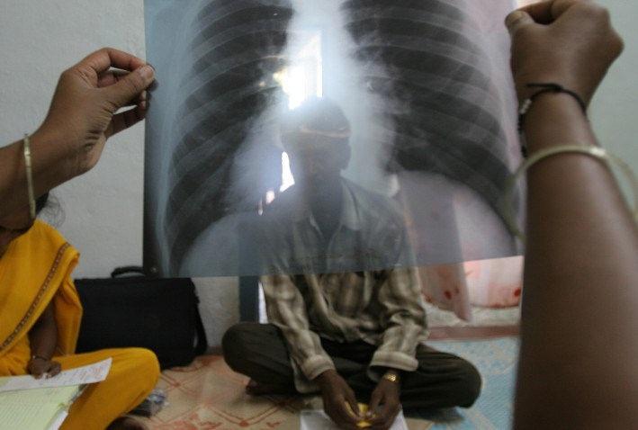 Hasta 1,7 millones de personas mueren al año por tuberculosis, según MSF