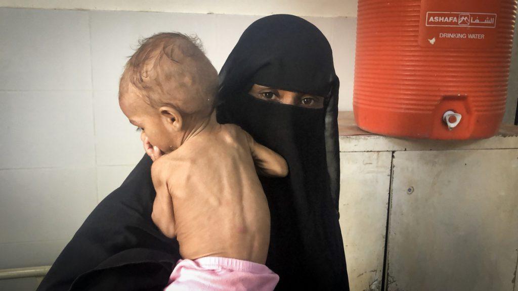 600.000 niños podrían morir de hambre en zonas de conflicto