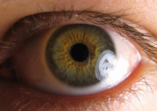 Las uveítis pueden ser causa de un 15% de las pérdidas visuales totales en niños