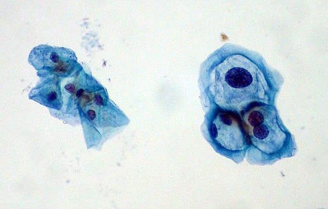 MSD y 31 entidades subrayan la necesidad de mejorar el conocimiento sobre el virus del papiloma humano